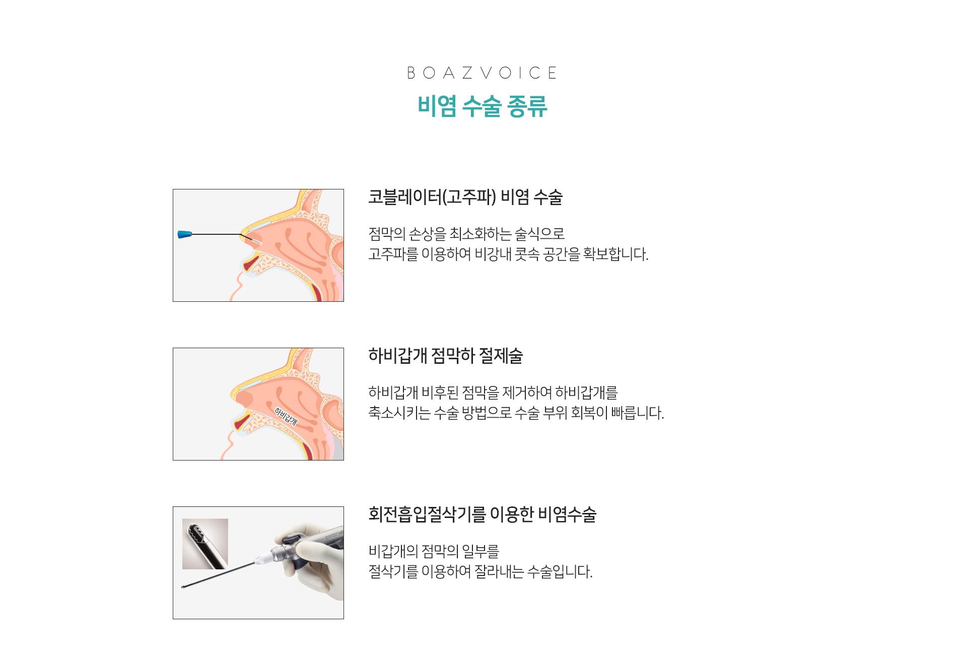 비염수술종류