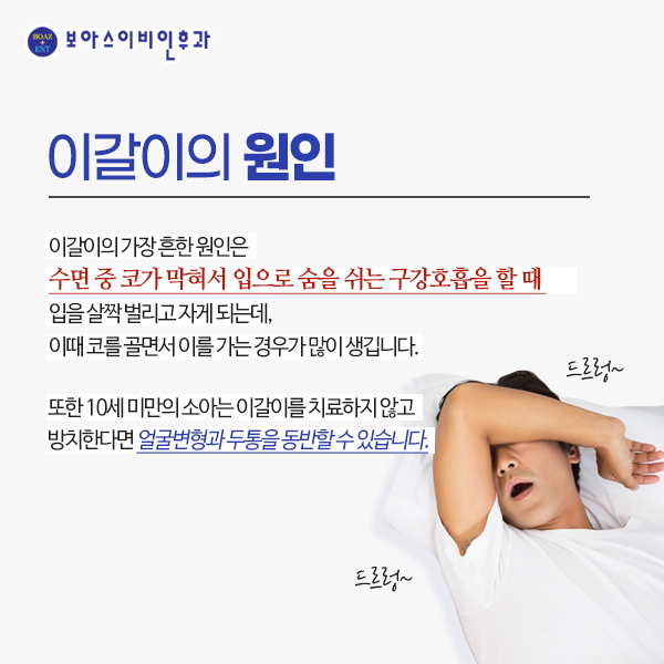#보아스이비인후과 #보아스약수본원 #보아스 #이갈이 #수면장애 #수면다원검사 #이갈이치료